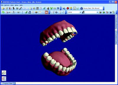dentrix software screenshot
