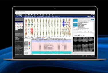 dentimax software screenshot