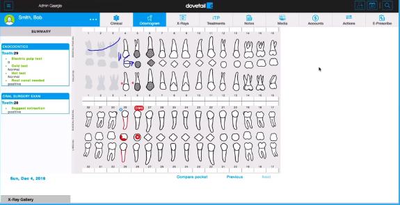 dovetail software screenshot