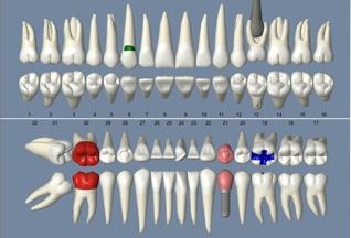 open dental software screenshot
