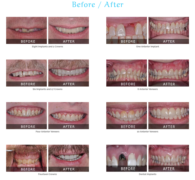 Dental website design: Use before and after photo's to advertise your dental services