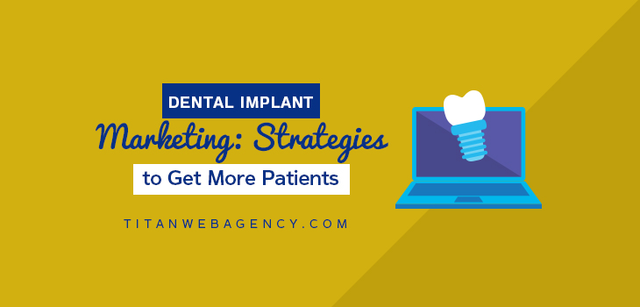 4 Tips to Better Dental Implant Marketing